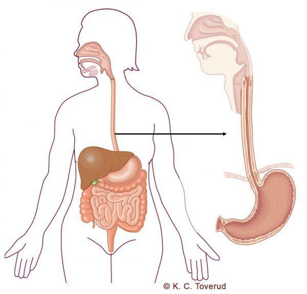 Matstrupe - Medicinska illustrationer är skapade av Kari C. Toverud CMI
